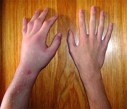 Что делать, если опухли руки и чешутся