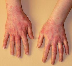 Что делать, если пальцы опухли и чешутся