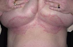 Появление раздражения под грудью