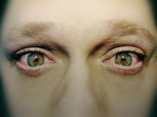 Зуд и жжение глаз