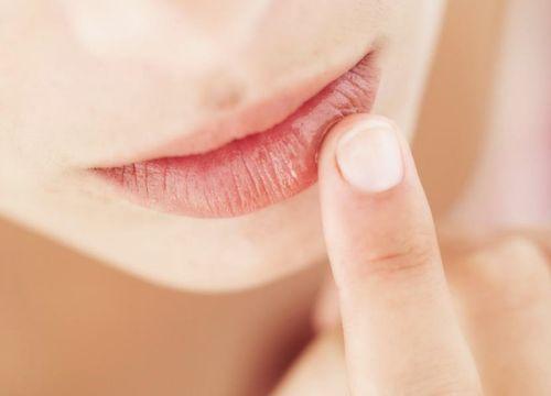 Зудит нижняя губа