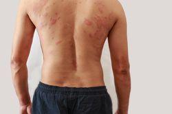 Сыпь на спине у мужчины