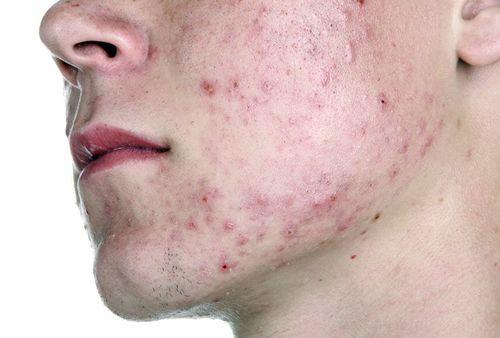 других демодекоз лечение кожи лица в домашних условиях былые