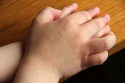 Инфицирование энтеровирусом