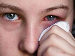 Аллергия в глазу