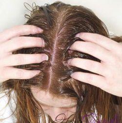Сухость кожи головы