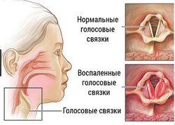 Причины зуда в горле
