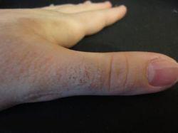 Зудят пальцы рук