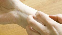 Зудят вены на руках