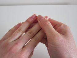 Зудит кожа на пальцах рук