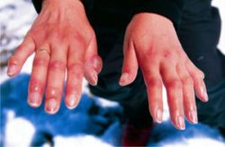 Аллергическая сыпь на руках