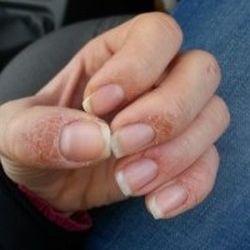 Зудят ногти