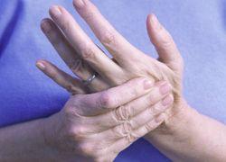 Чешится кожа и ломит суставы боли в суставах у диабетиков