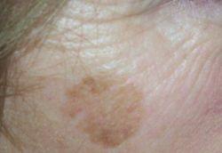 Пятно на лице