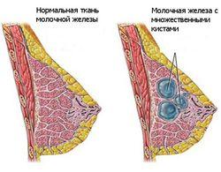 Разница в здоровой и проблемной груди