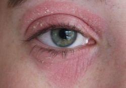 Причины покраснения и шелушения глаз