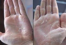 Отслоение кожи на пальцах