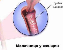 MAKEUP - Отбеливающие полоски для зубов - Crest