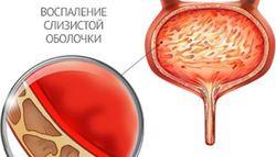 Причины и лечение жжения в мочевом пузыре