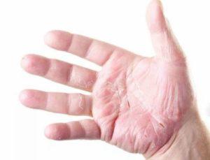 Отслоение кожи на руке