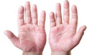 Отслоение кожи на ладонях