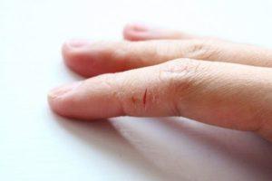 Трещины на пальцах рук