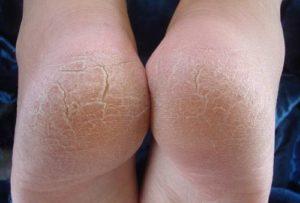 Трещины на ступнях