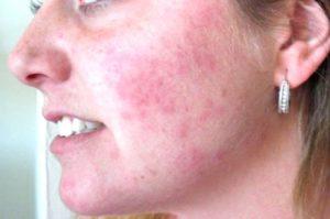 Розеола на лице