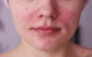 Покраснения на коже у женщины